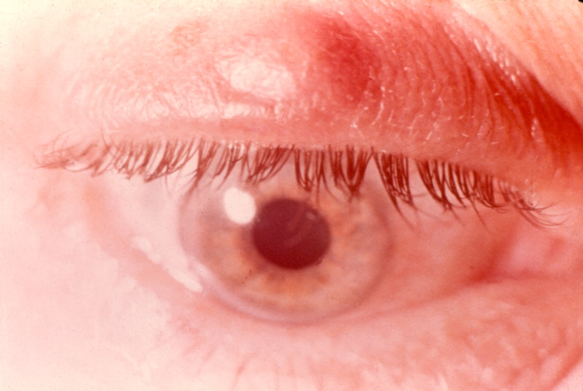 What to do with tumors on the eyelids (video recommendations)